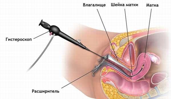 Лечение синехий в полости матки