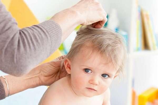 При подозрении на такой недуг очень важно показать ребенка дерматологу.
