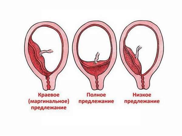 От чего зависит предлежание плаценты
