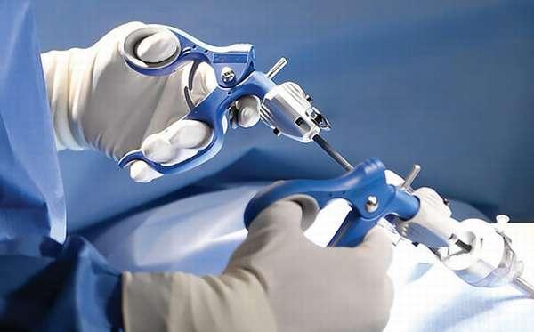 Проведение лапароскопической цистэктомии
