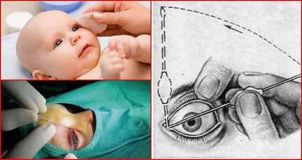 Дакриоцистит у новорожденных