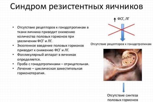 Лечение синдрома резистентных яичников