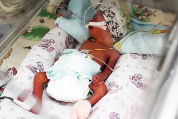Поскольку дыхание малыша может быть еще неполноценным, его могут подключить к аппарату искусственной вентиляции легких.
