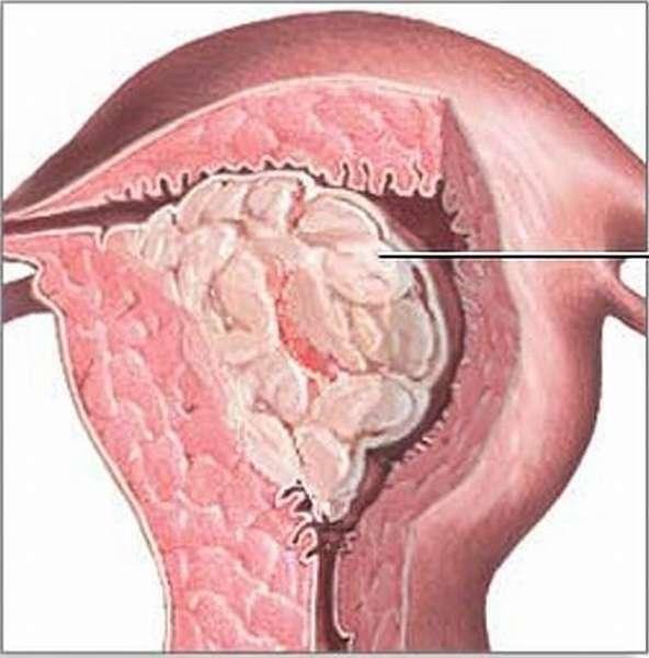 Лечение очаговой гиперплазия эндометрия причины и диагностика