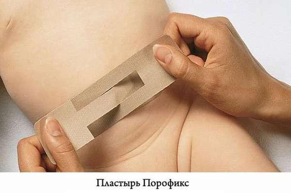 Как использовать пластырь для пупочной грыжи для новорожденных