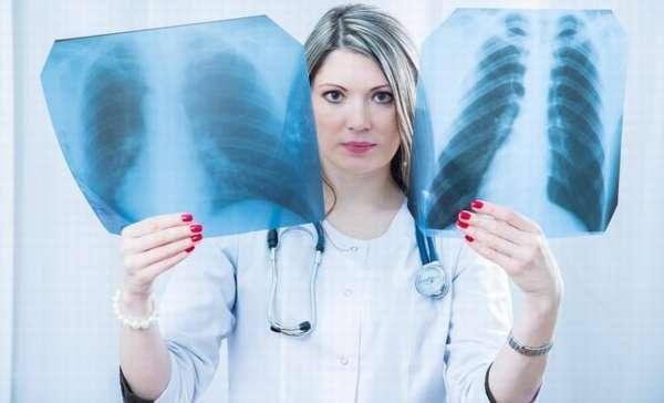 Проверка лёгких перед резекцией