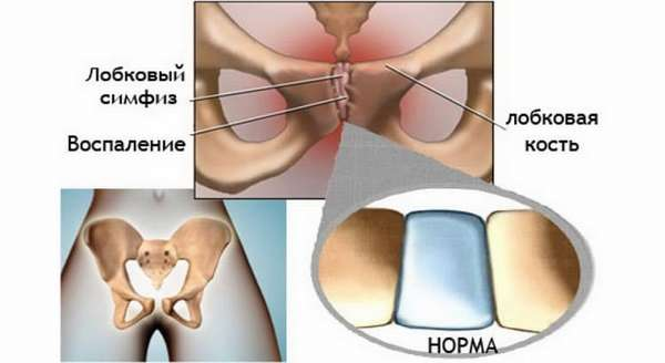 болит ли лобковая кость при беременности довольно