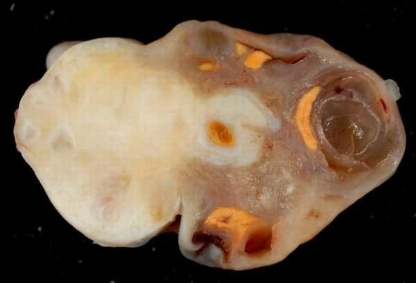 Удалённая фиброма женского яичника