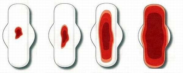 Нестабильные месячные при кисте во время беременности