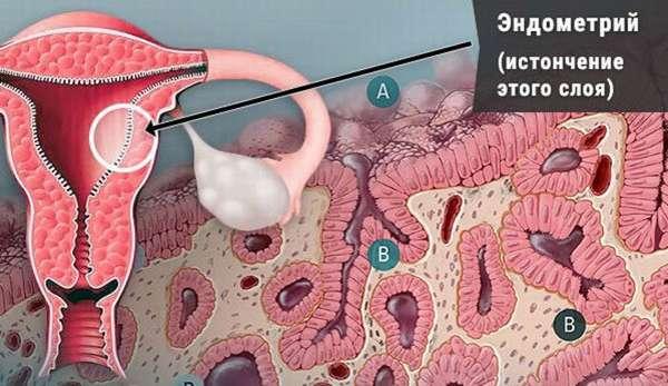 Можно ли забеременеть с тонким эндометрием
