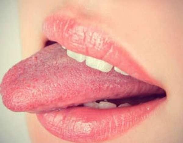 Почему язык обложило коричневым налетом