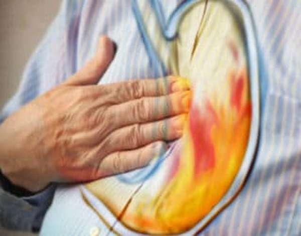 Оцениваем кислотность желудка в домашних условиях