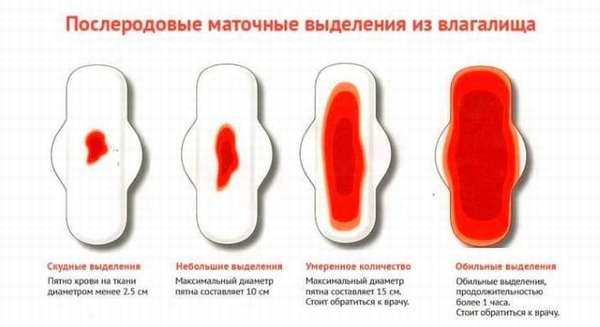 Маточные кровотечения после родов