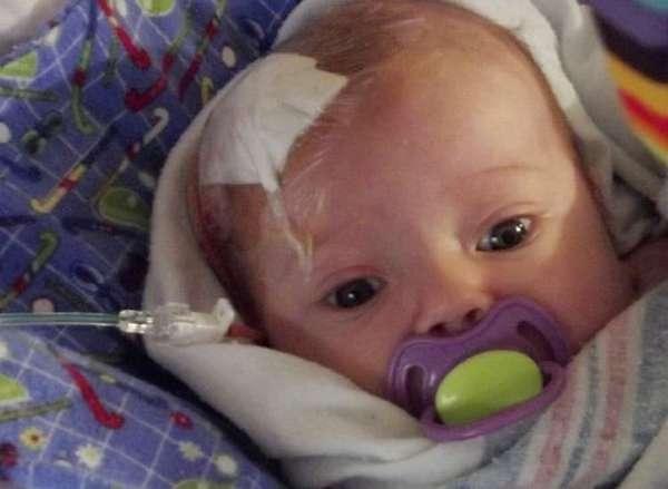 субэпендимальная киста у новорожденного ребенка может потребовать оперативного вмешательства для лечения.