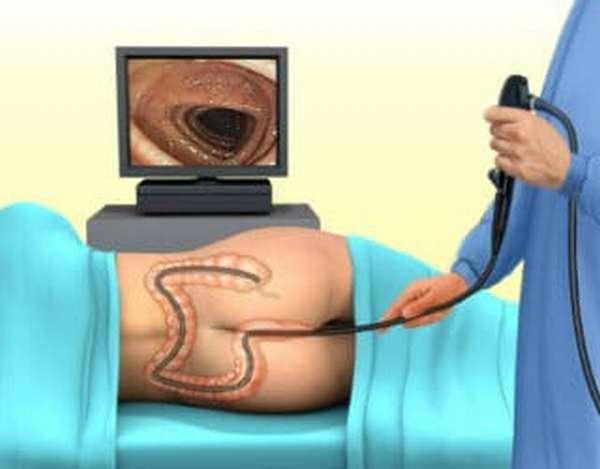 Для чего делают ирригографию кишечника и как подготовиться