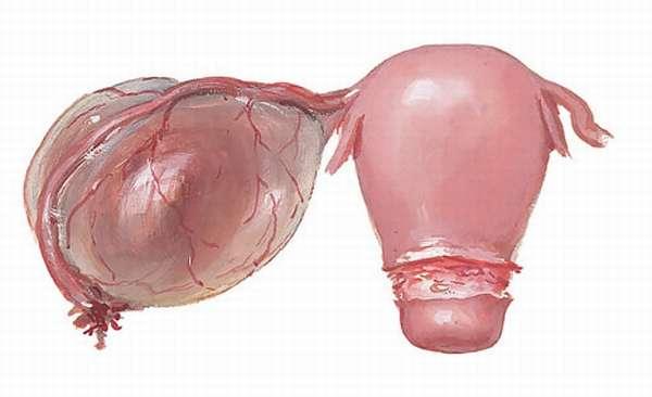 Фото параовариальной кисты яичника у женщины
