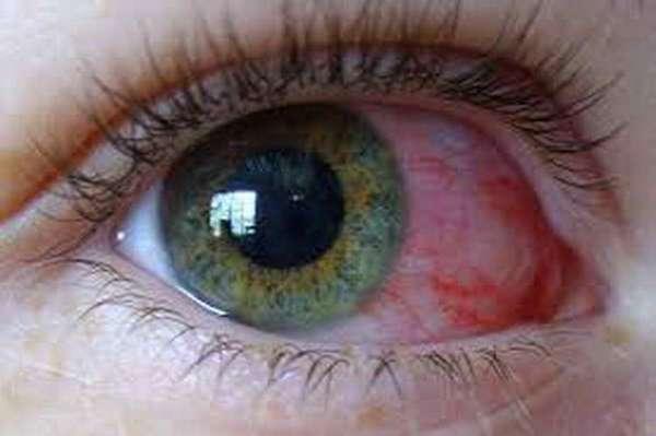 тобрекс глазные капли для детей до года
