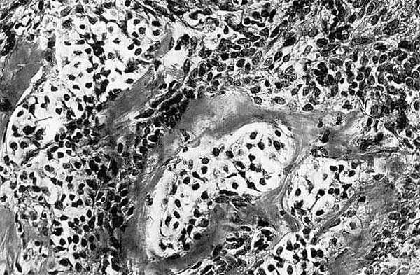 Как выглядят клетки низкодифференцированной андробластомы женских яичников