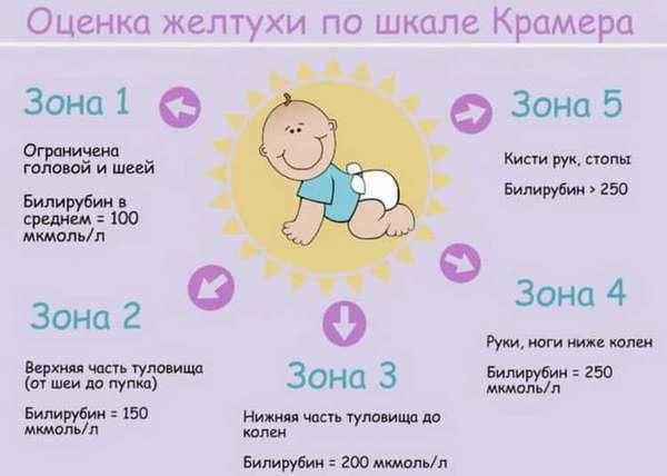 Как проявляется физиологическая желтуха новорожденных