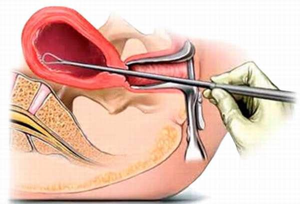 Гиперплазия эндометрия в менопаузе отзывы о выскабливании