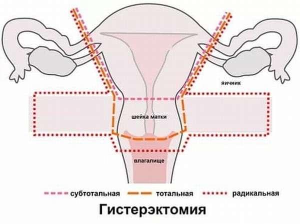 Виды гистерэктомии