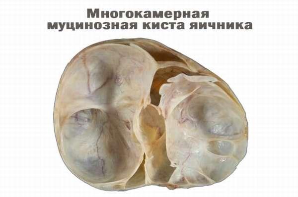 Муцинозная киста яичника у женщины после 50 лет