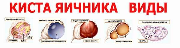 Классификация кисты яичников