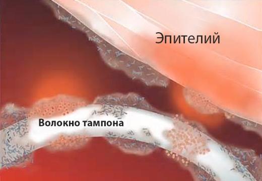 Проникновение инфекции