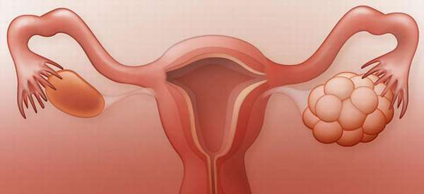 Как вылечить синдром склерокистозных яичников