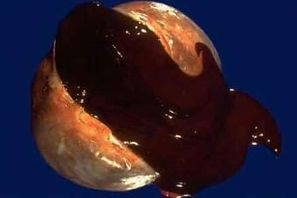 Эндометриоидное кистозное образование парной половой железы