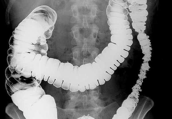 Рентген при рвоте у ребенка