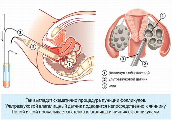 Как избежать гиперстимуляции яичников при ЭКО лечение патологии