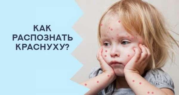 Признакии симптомыкраснухи у ребенка