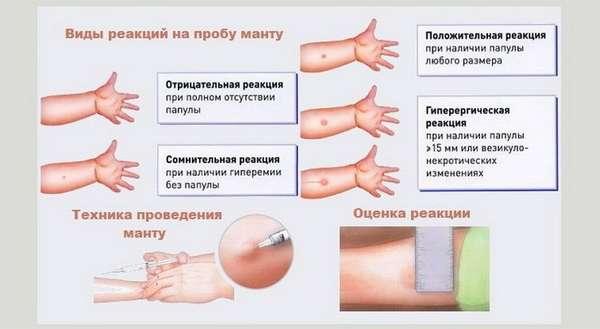 Какой может быть реакция на Туберкулин