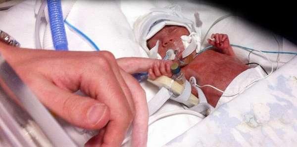 Глубоко недоношенные дети часто нуждаются в реанимации.