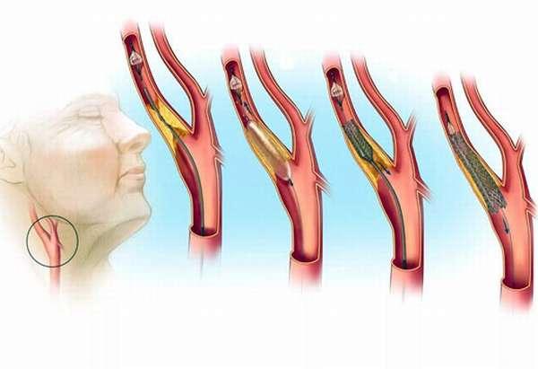 Атеросклезор артерий
