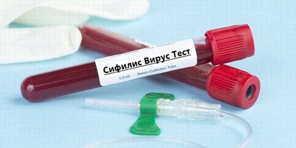 Сифилис кровь тест