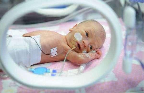 Развитие недоношенного ребенка по месяцам до года, если все хорошо, происходит очень быстро.