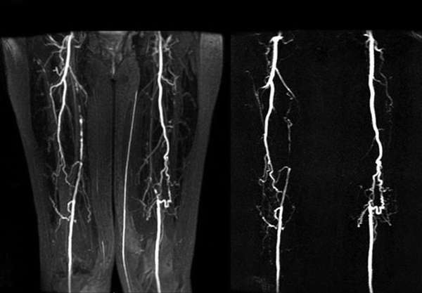 Рентген сосудов ног