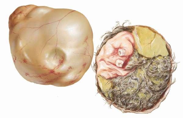 Узи тератомы яичника причины возникновения патологии