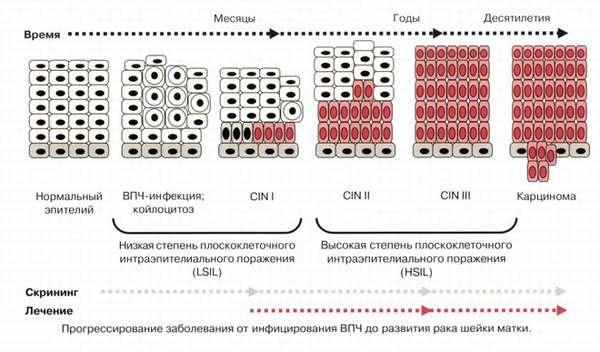Расшифровка цитологического исследования мазков шейки матки