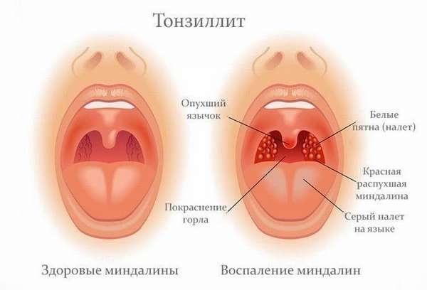 Ангина при беременности в первом триместре очень опасна, так она может непосредственно повлиять на развитие эмбриона.