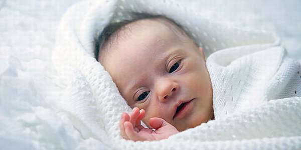 Синдром Дауна у новорождённого ребёнка