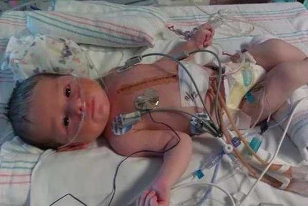 В некоторых случаях только операция может исправить порок сердца у новорожденных.