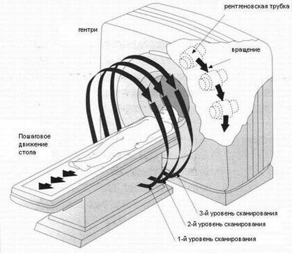 Как выглядят легкие при бронхите на флюорографии? Снимки разных форм патологии