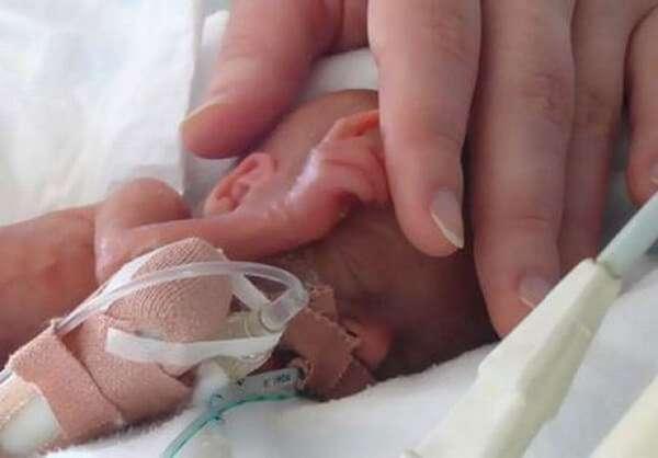 У ряда женщин случаются преждевременные роды на 24 неделе беременности.
