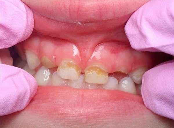 Врач должен оценить состояние зубов малыша, прежде чем рекомендовать такую процедуру.