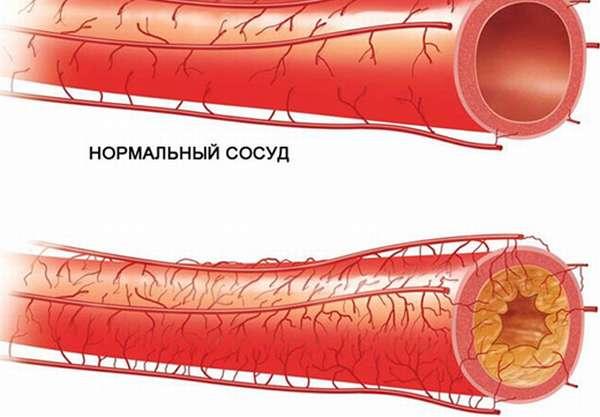 Атеросклероз в сосудах