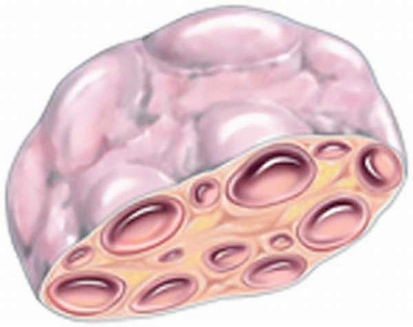 Фото в разрезе поликистозного яичника