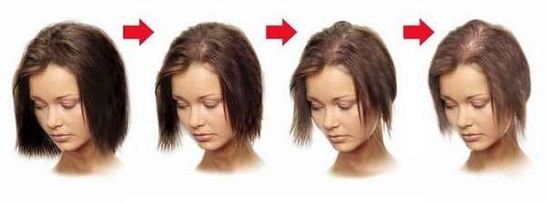 сильно выпадают волосы после родов, что делать